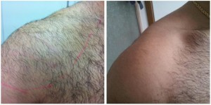 before and after ipl hair removal doncaster