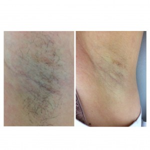 IPL hair removal underarm before and after