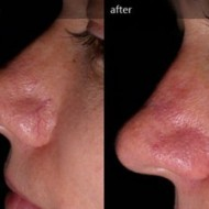 Red Vein Removal